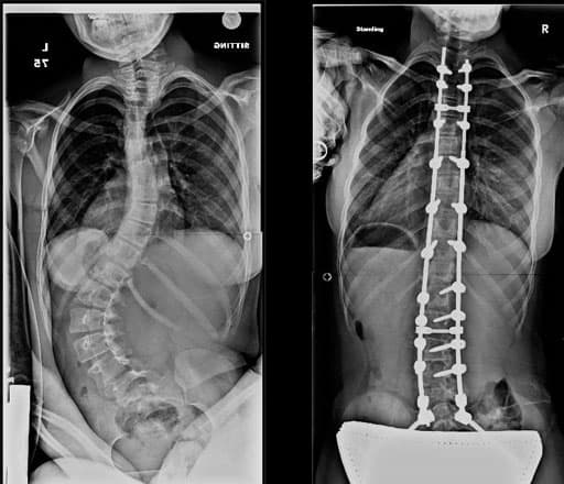 sex after spinal fusion surgery