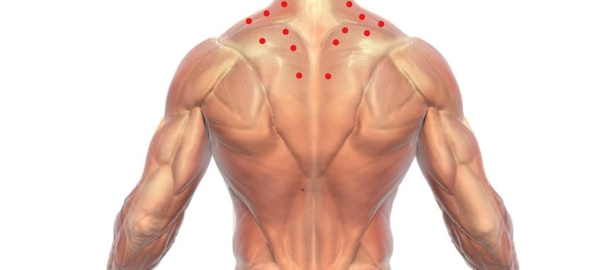 trigger points in the back